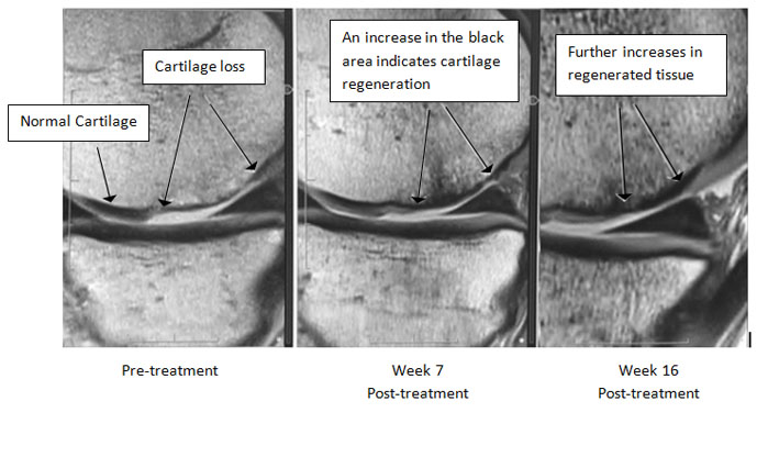 4 Osteoarthritis Knee Outcomes